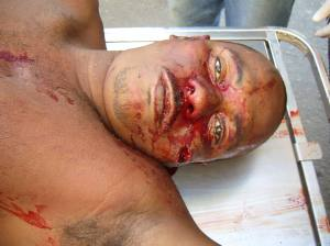 Sidnei Francisco da Silva, 32 anos